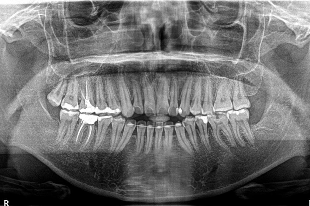 Radiografías Panorámicas (Ortopantomografía)