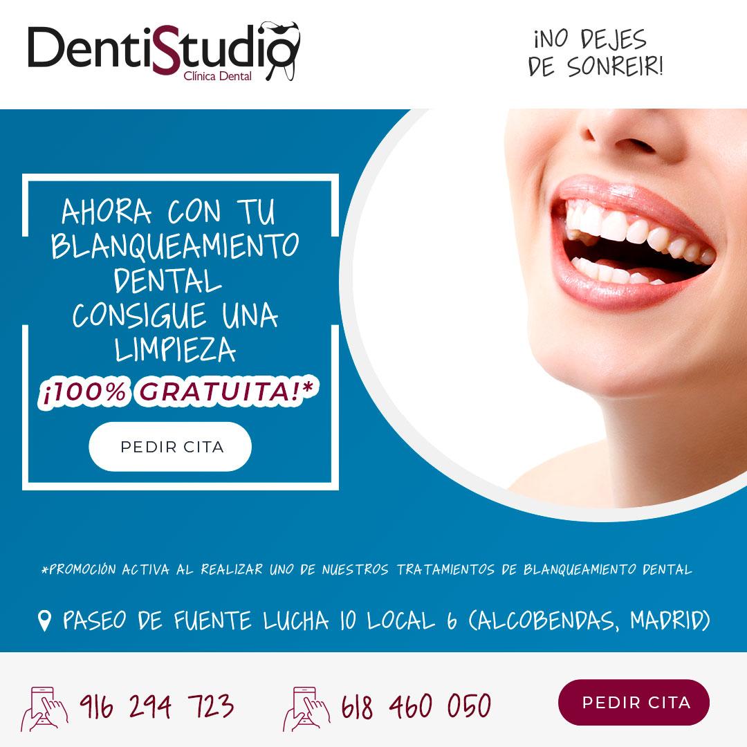 Blanqueamiento dental Alcobendas